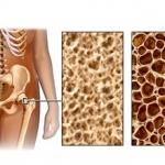 รู้ไว้ใช่ว่า โรคกระดูกพรุนคืออะไร สาเหตุและวิธีการรักษาเพื่อกระดูกที่แข็งแรง