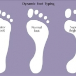 เลือกสวมร้องเท้าให้เป็น เพื่อสุขภาพเท้า