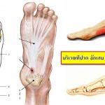 """เอ็นฝ่าเท้าอักเสบ เป็นโรค """"รองช้ำ"""" สาเหตุ และวิธีป้องกัน"""