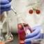 PBGS Plusผลิตภัณฑ์สารสกัดเปลือกสนและเม ต้านอนุมูลอิสระ ดูแลและป้องกันหัวใจของคุณ thumbnail 4